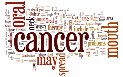 Oral Cancer: 7 Easy Ways to Prevent Oral Cancer